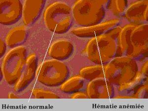 Anémie falciforme de la drépanocytose